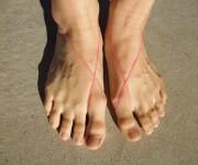 輪ゴムをつけた足