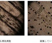 2種の黒色素胞